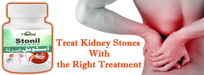 Natural Kidney Stone Treatment