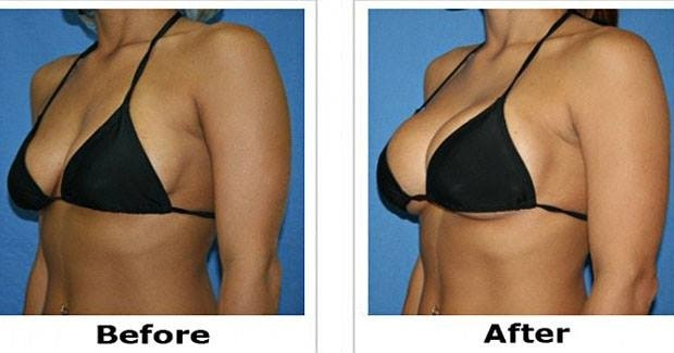 Best-Ways-to-Increase-Breast-Size-without-Surgery